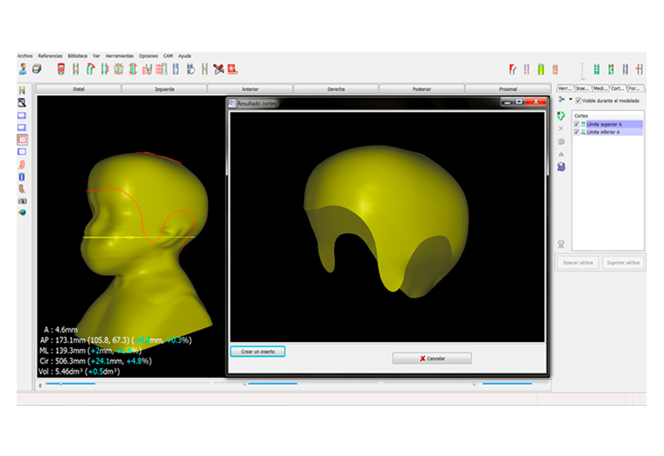 Ortesis craneal en base a imágenes hechas con escáner 3D