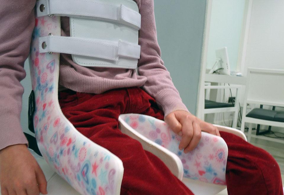 Sedestación en niños. Parálisis Cerebral Infaltil - PCI