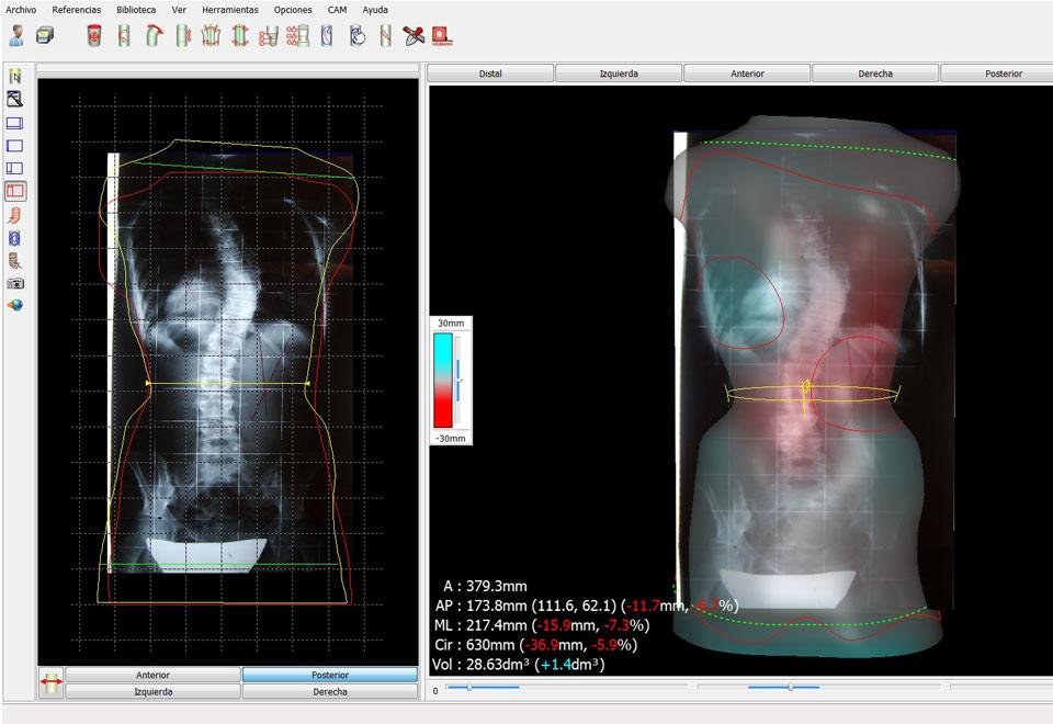Tecnología CAD-CAM para diseño y fabricación de corses