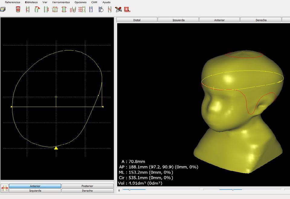 Tecnología CAD-CAM para diseño y fabricación de ortesis craneales