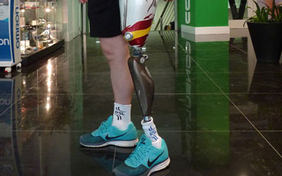 Sistema biónico de prótesis de pierna